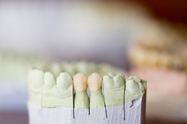 Dental_Crowns