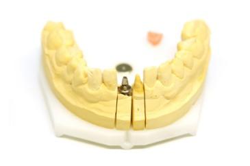 Dental_Bridges